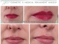 a. lips