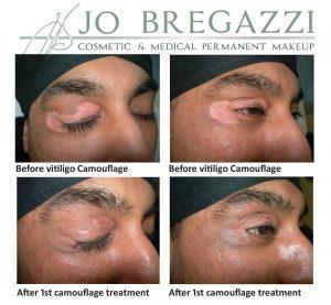 Scar camouflage for vitiligo