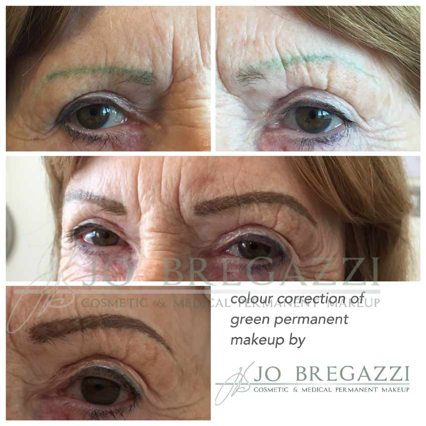 Correction of Permanent Makeup Mistakes - Jo Bregazzi