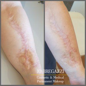 Skin graft scar